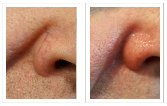 Thread Vein Removal Before and after 3