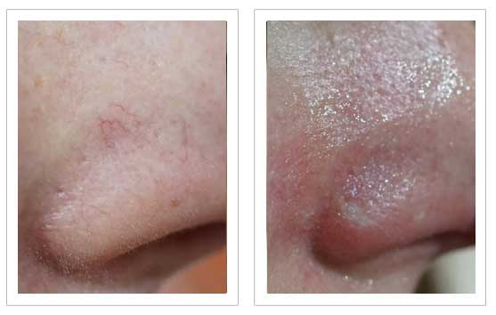 Thread Vein Removal Before and after 4