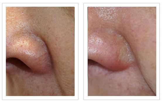 Thread Vein Removal Before and after 5