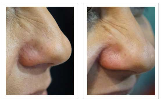 Thread Vein Removal Before and after1