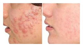 facial acne ipl treatments