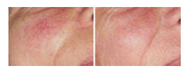 rosacia treatments
