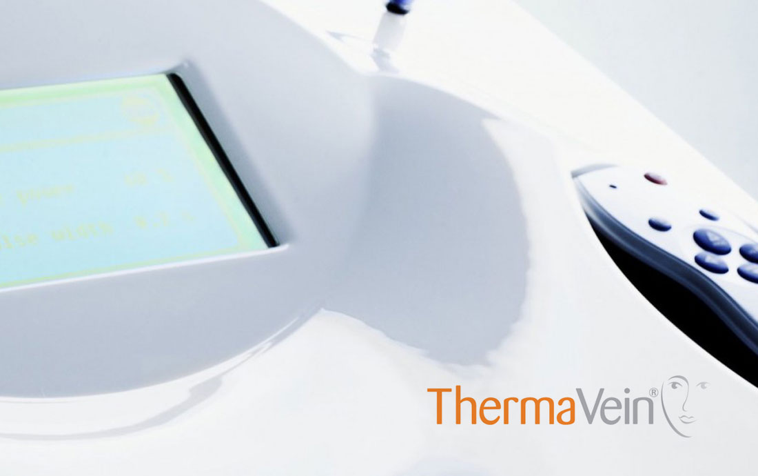 thermavein vein removal equipment